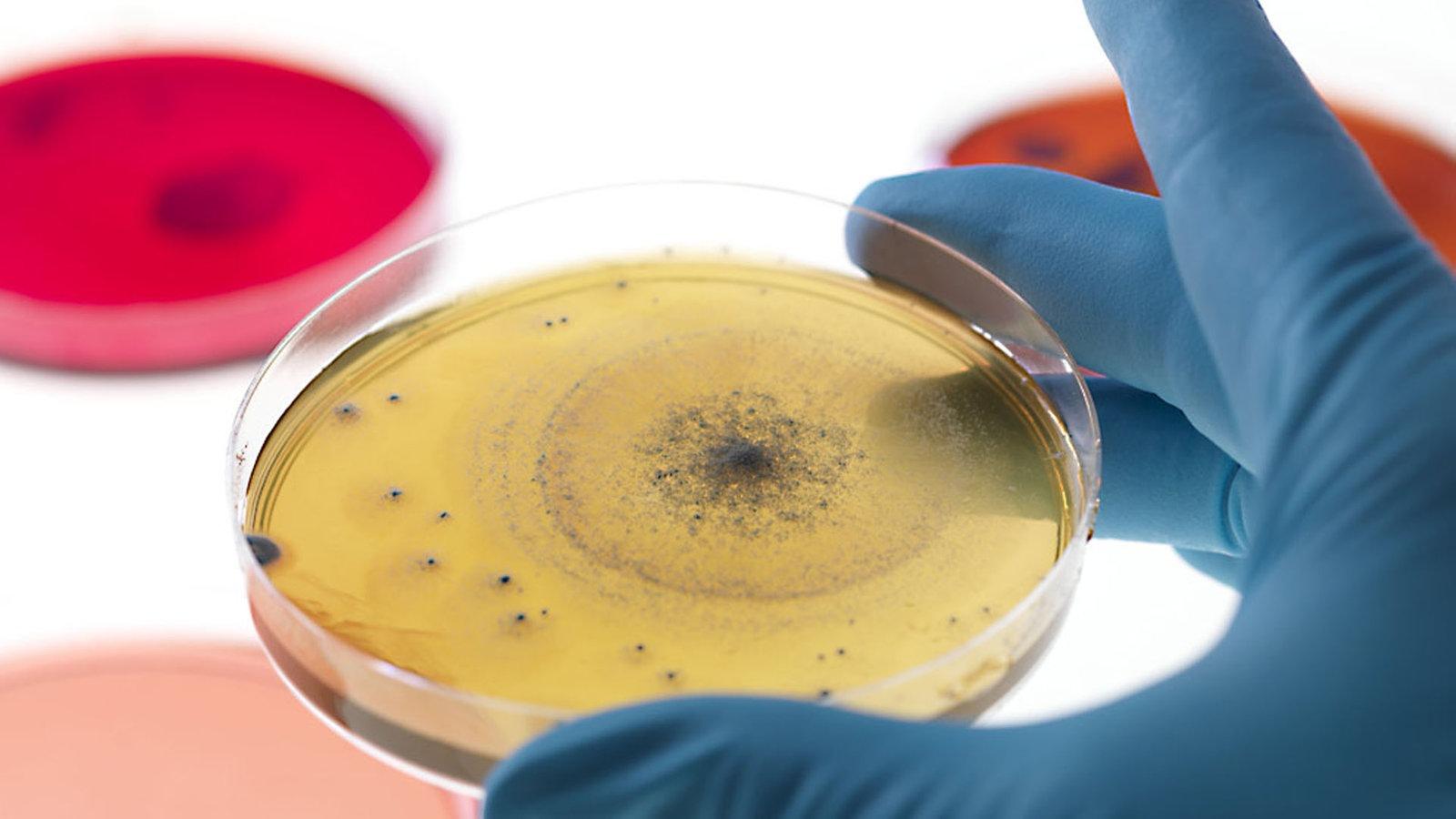 Supermacht Im Mikrokosmos Bakterien Planet Wissen