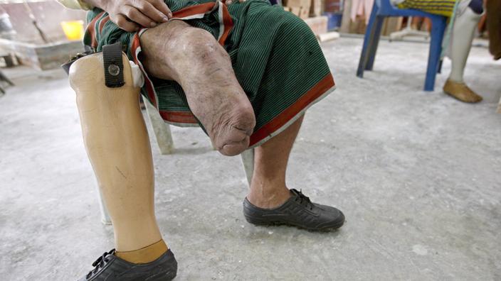 Prothesen: Beine für die Dritte Welt - Medizin