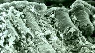 Rasterelektronenmikroskopische Aufnahme von der Schleimhaut des Dickdarms