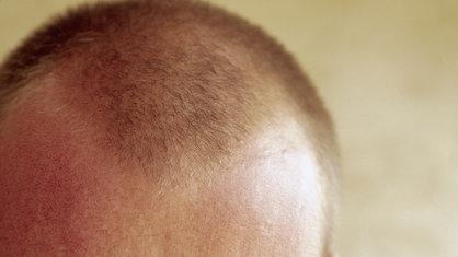 Der Biokomplex gegen den Haarausfall die Rezensionen