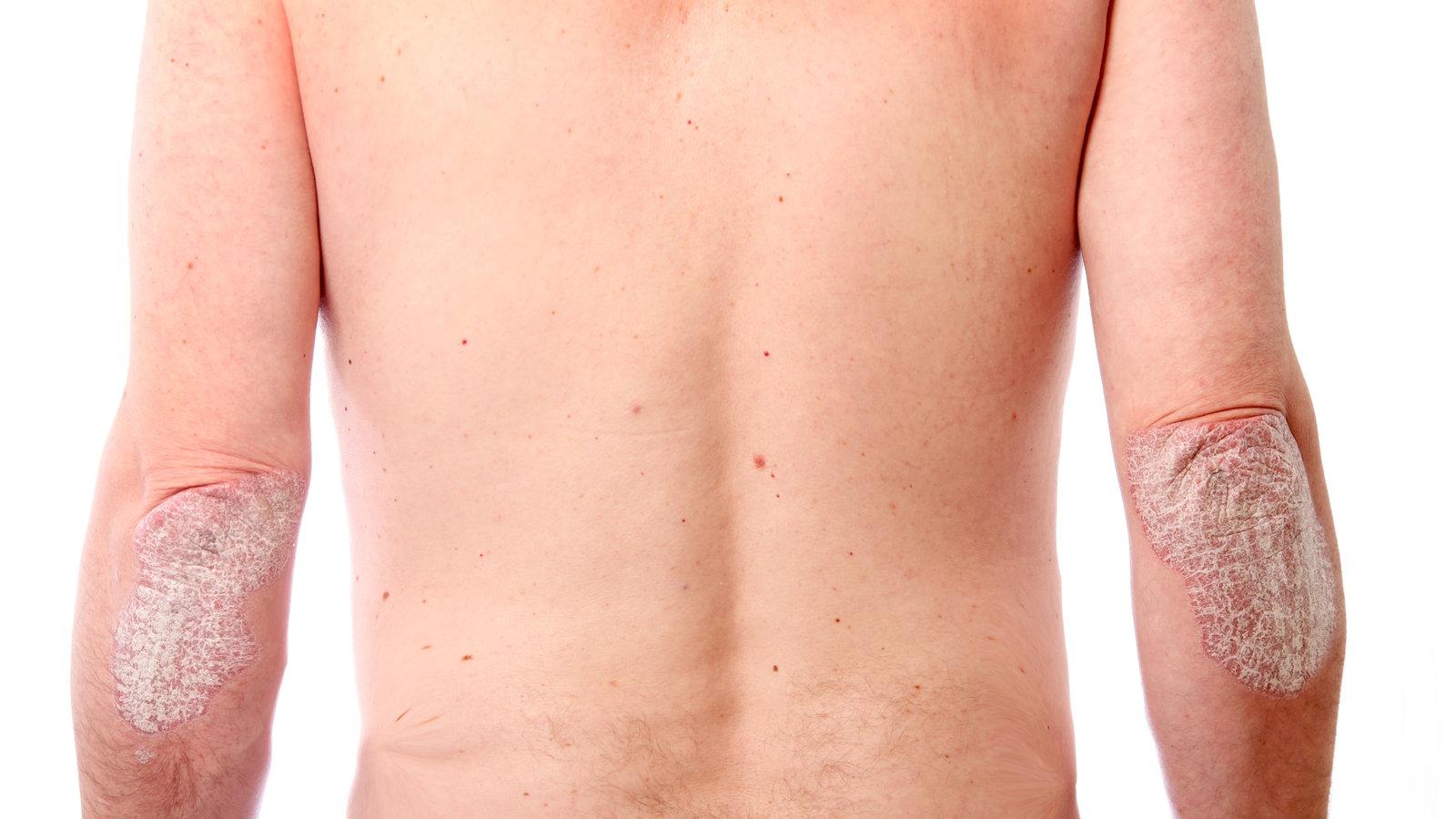 Haut des Menschen: Schuppenflechte