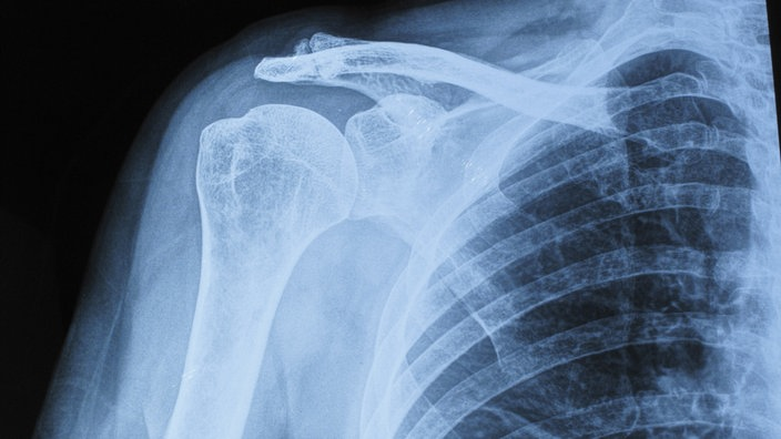 Arthrose: Homöopathisch vorbeugen mit Ernährung!