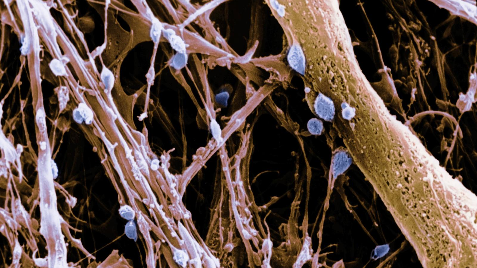 Nerven: Nervenzellen - Nerven - Natur - Planet Wissen
