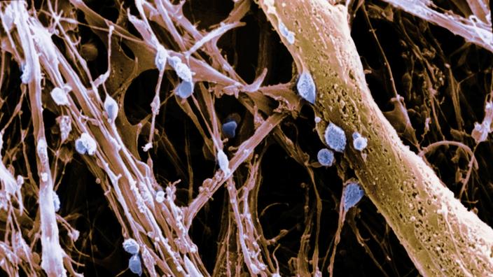Anatomie des Menschen: Nerven - Nerven - Natur - Planet Wissen