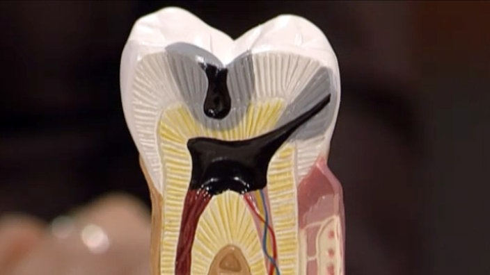 Zähne Züchten