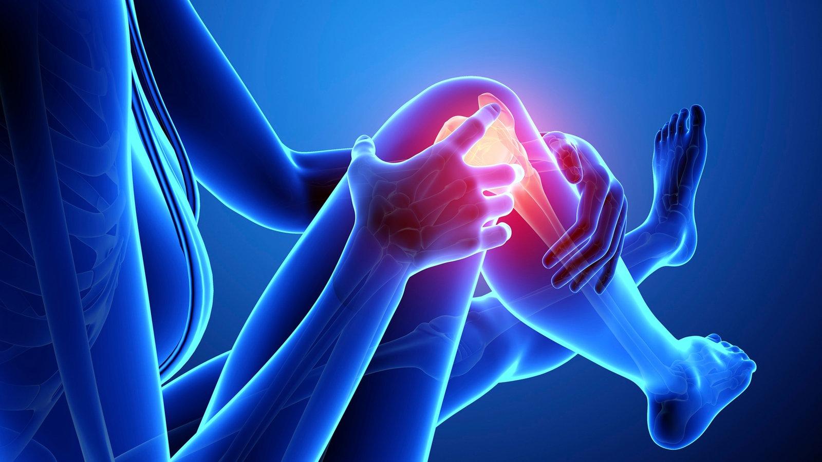Arthrose – die unterschätzte Volkskrankheit