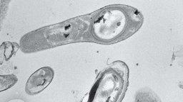 schwarz-weiß Ansicht von Bakterien unter einem Mikroskop