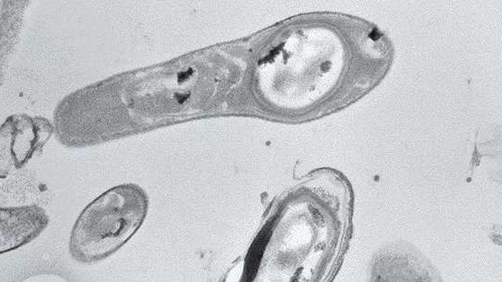 Planet Wissen Bakterien