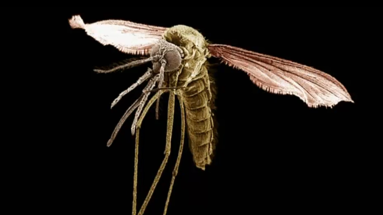 parasiten schmarotzer in unserem k rper planet wissen. Black Bedroom Furniture Sets. Home Design Ideas