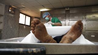 Ein Rechtsmediziner untersucht eine Leiche