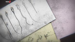 Alte anatomische Zeichnungen von einzelnen Spermien