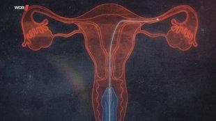 Computergrafik: Der Weg eines Spermiums durch Gebärmutter und Eileiter