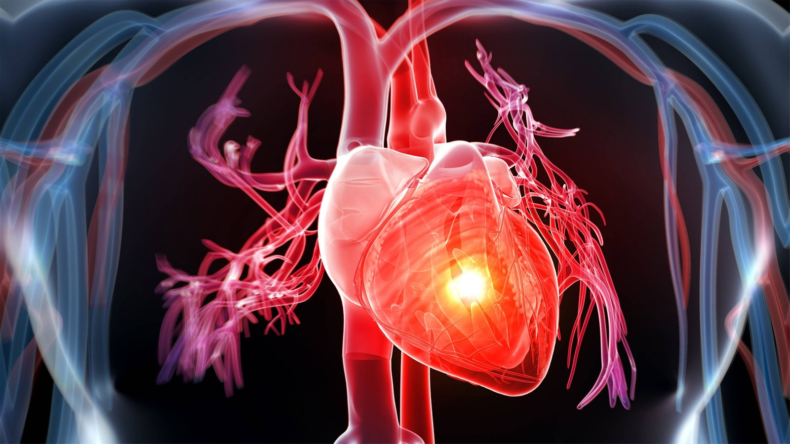 Herz: Herzinfarkt - Herz - Natur - Planet Wissen